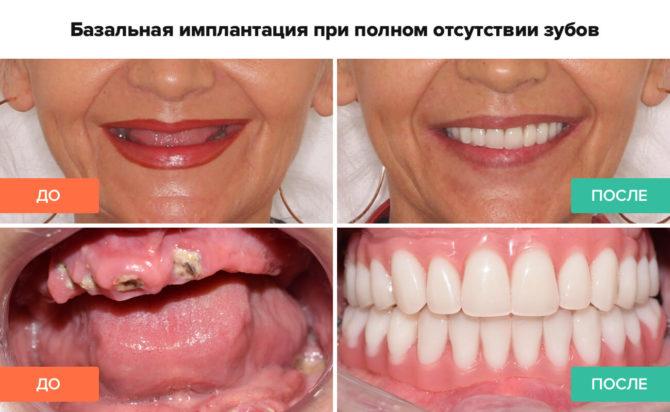 Базальная имплантация при полном отсутствии зубов