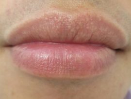 Белые пятнышки на губах - милии