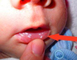 Белые точки во рту грудничка при кандидозе