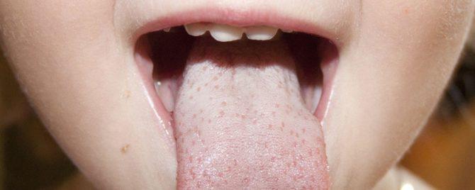 Почему на языке у ребенка белый налет