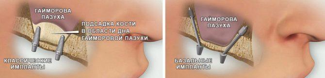 Близость базальных имплантов к гайморовой пазухе