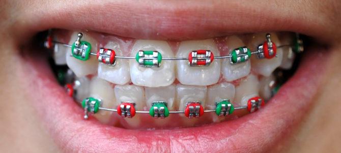 Брекеты для выравнивания зубов