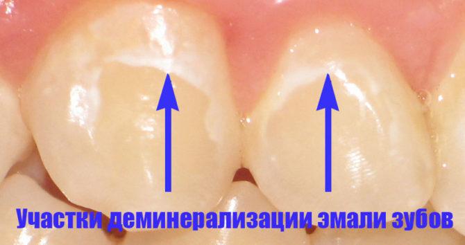 Деминерализованные участки зубов