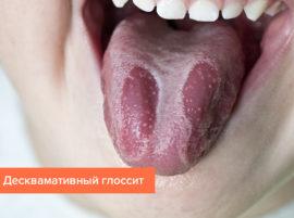 Десквамативный глоссит