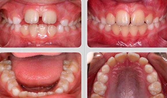 Детские зубы до и после применения трейнера Т4К