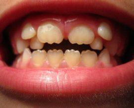 Дистопия зуба