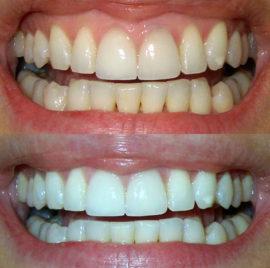До и после отбеливания зубов содой в домашних условиях
