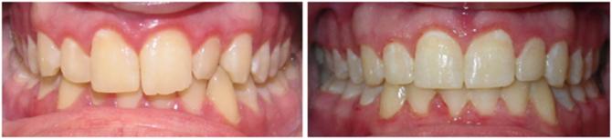 До и после зубных скоб