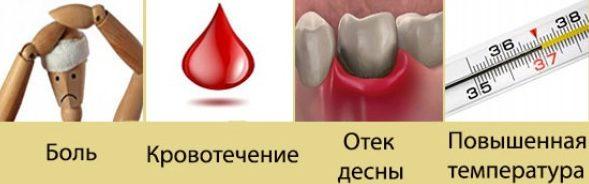 Допустимые последствия удаления зуба мудрости
