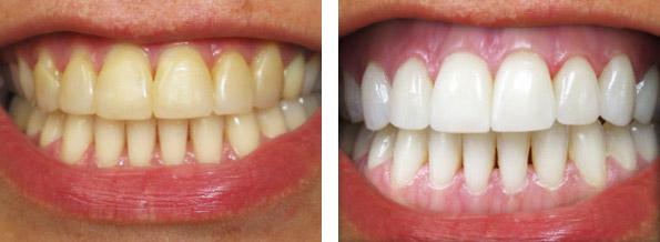 Эффект после чистки зубов углем
