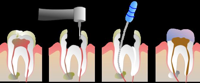 Эндодонтическое лечение гранулемы