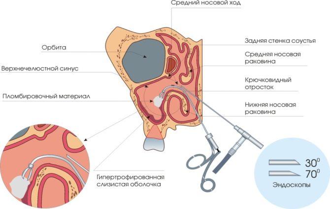Эндоскопический метод удаления кисты