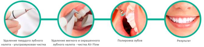 Этапы комплексной профессиональной чистки зубов