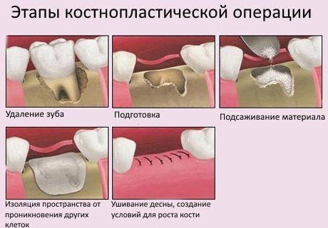 Этапы костнопластической операции