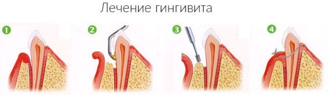 Этапы лечения гингивита