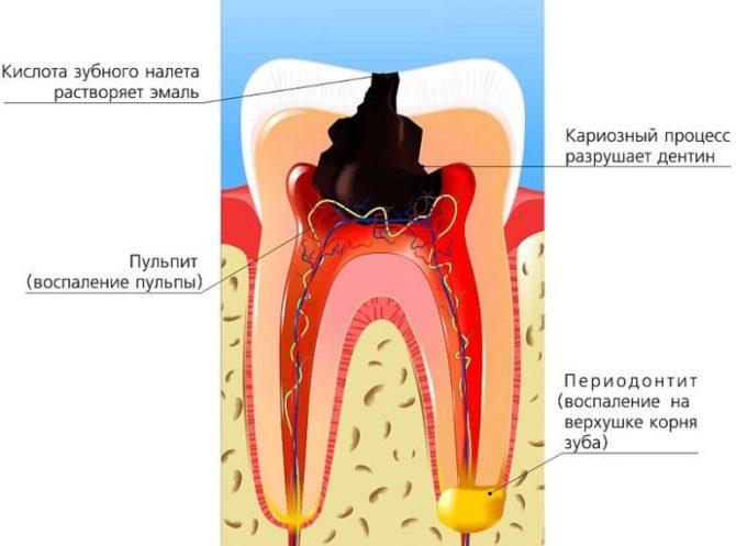 Этапы разрушения зуба