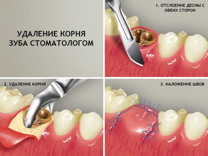 Этапы удаления корня зуба стоматологом