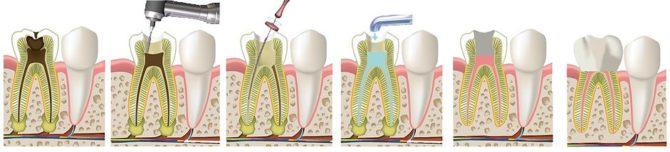 Этапы удаления нерва зуба