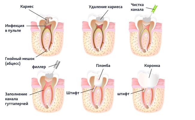 Этапы восстановления зуба на штифте