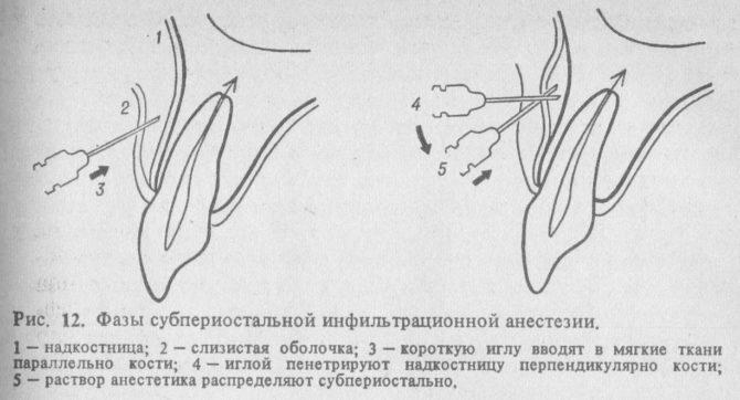 Фазы субпериостальной инфильтрационной анестезии