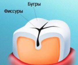 Фиссуры на зубах