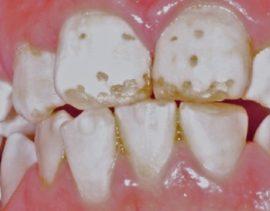 Флюороз молочных зубов