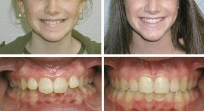 Фото до и после лечения дистального прикуса брекетами