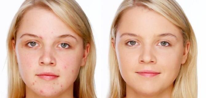 Фото до и после лечения прыщей пастой