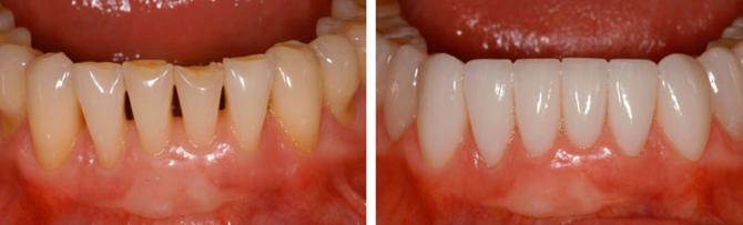 Фото до и после установки виниров на нижние зубы