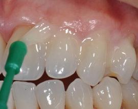 Фторирование зубной эмали