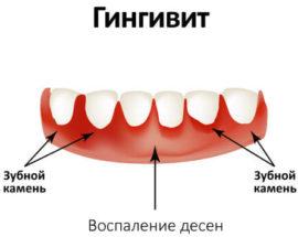 Гингивит на деснах