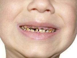 Гнилые молочные зубы