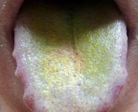 Грибковое поражение языка