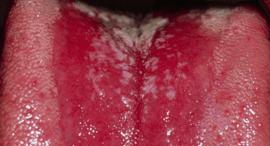 Грибковый стоматит