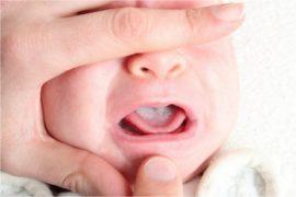 Грибковый стоматит у ребенка