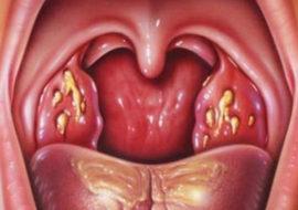 Хронический тонзиллит с гнойными пробками