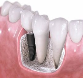 Импланты зубные