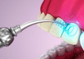 Инфографика как происходит очищение зубов ультразвуком