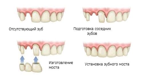 Инфографика как устанавливают мост на три зуба