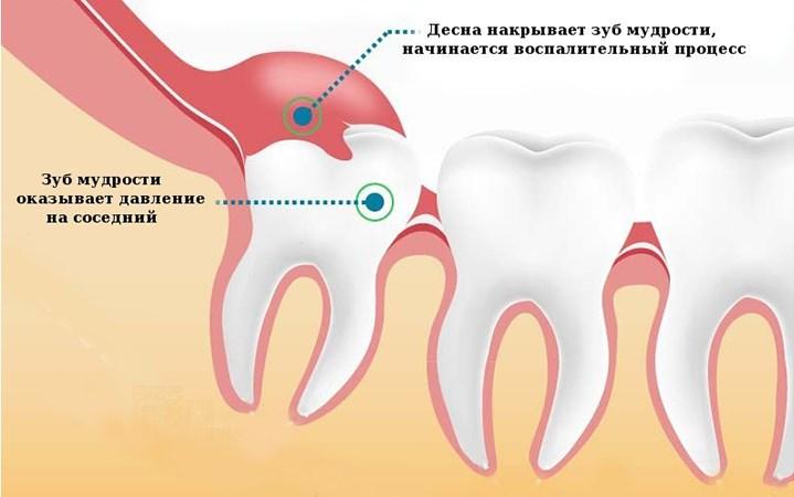 зуб мудрости растет и болит десна фото