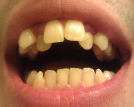 Искривление зубов во взрослом возрасте