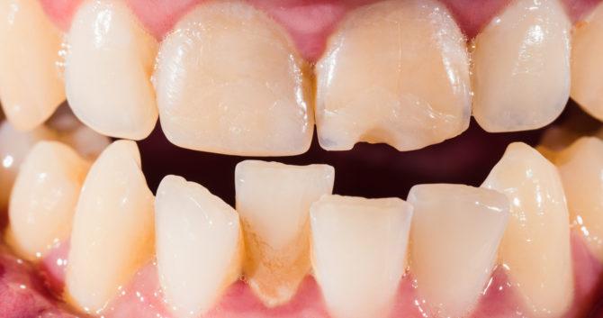 Искривленные зубы