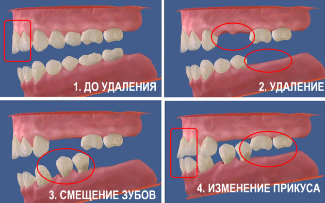 Изменение прикуса после удаления зуба