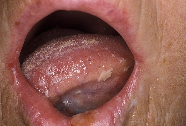 неприятный кислый запах изо рта