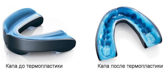 Как капа должна сидеть во рту