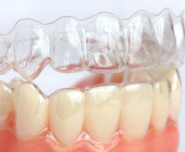 Капа на зубы