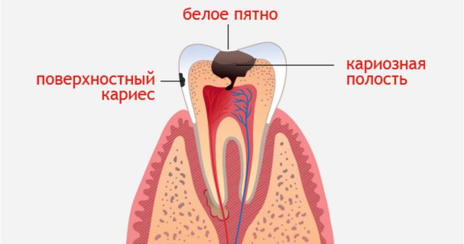 Что делать если жутко болит зуб thumbnail
