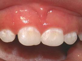 Кариес молочных зубов в стадии пятна