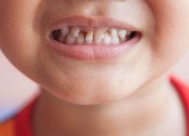 Кариес на молочных зубах