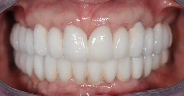 Можно ли на кривой зуб поставить коронку